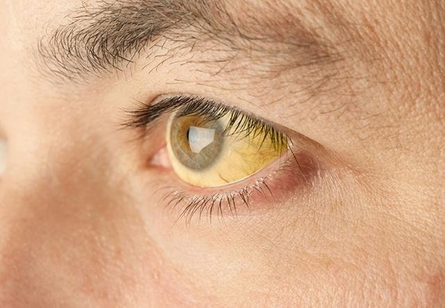 Прививка от желтой лихорадки. Где сделать, за сколько до поездки, срок действия, противопоказания, побочные эффекты